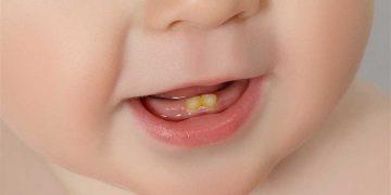 اصفرار أسنان الطفل